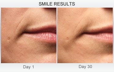 derm-exclusive-before-and-after (2)