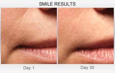 derm-exclusive-before-and-after (23)