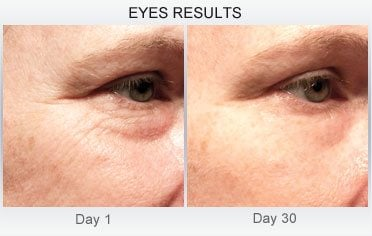 derm-exclusive-before-and-after (29)
