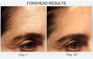 derm-exclusive-before-and-after (3)