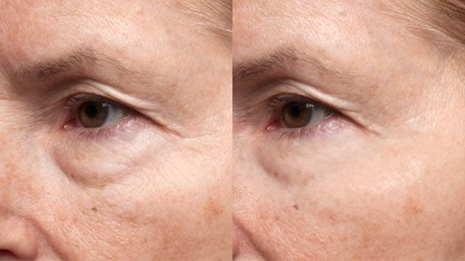 derm-exclusive-before-and-after (5)