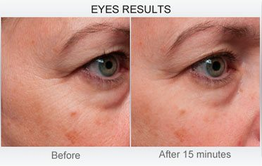 derm-exclusive-before-and-after (6)