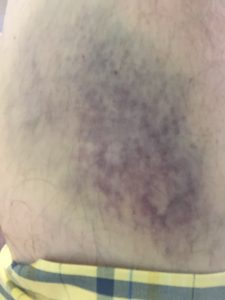 wall-climb-bruise
